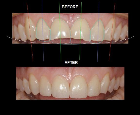 KOMPOZİT BONDING veya VENEERS ile SMILE TASARIMI