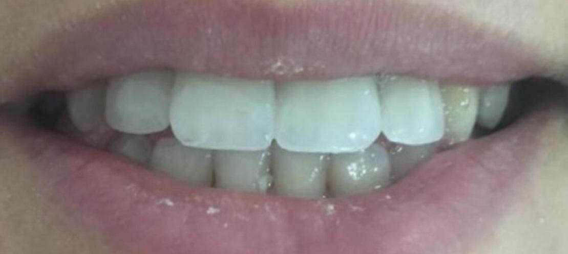 Süleyman Mert Ağız ve Diş Sağlığı Merkezi Öncesi Sonrası