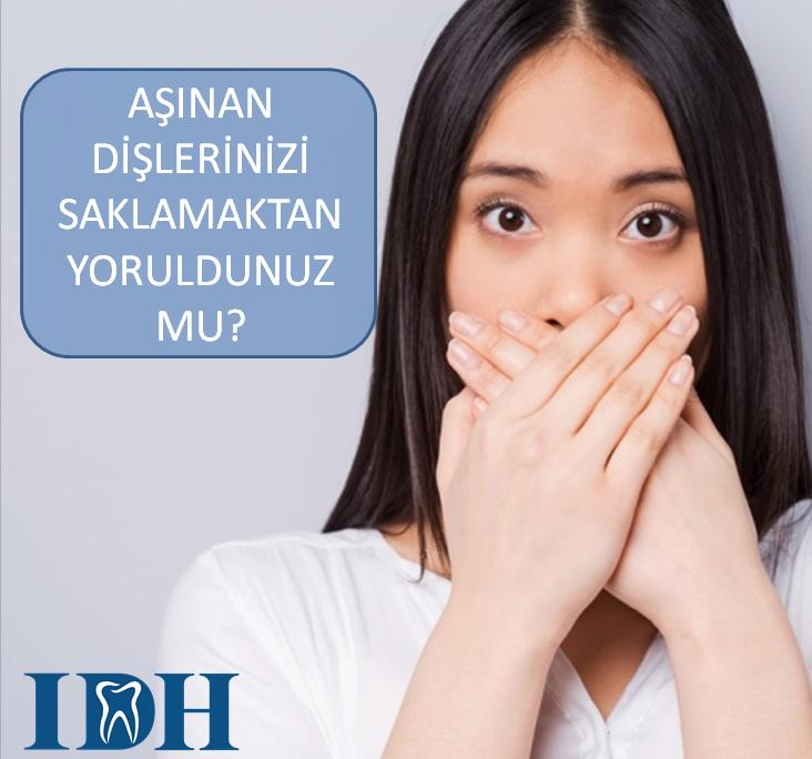 AŞINAN DİŞLERİME NE YAPABİLİRİM ? - Estetik Diş Hekimliği Antalya