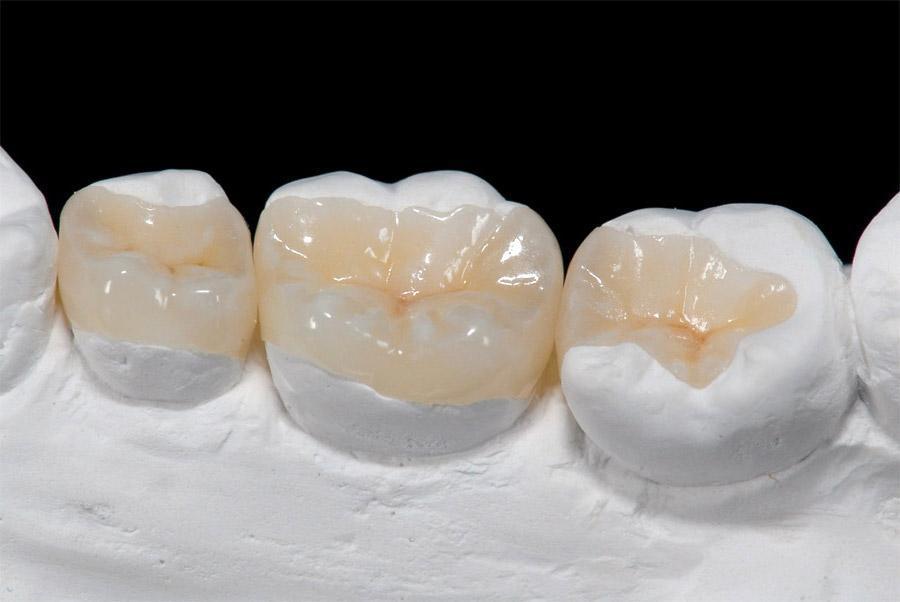 Zahnfüllung verloren